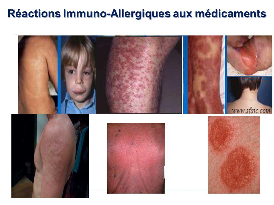Réactions Immuno-Allergiques aux médicaments