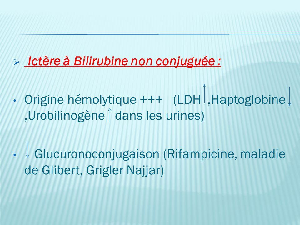 Ictère à Bilirubine non conjuguée :