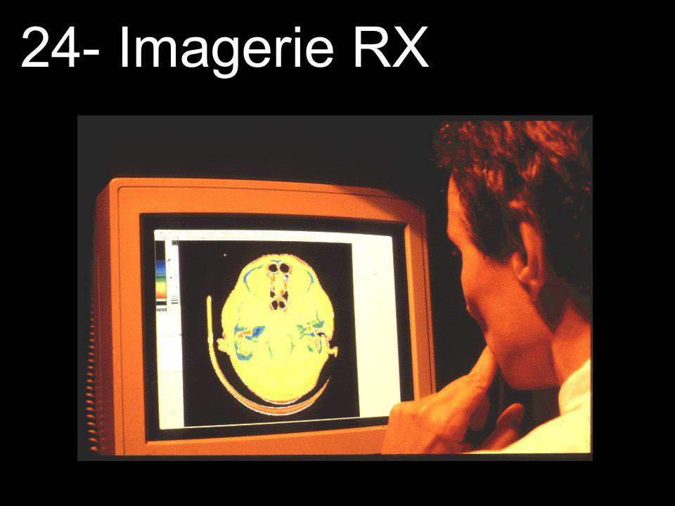 24- Imagerie RX