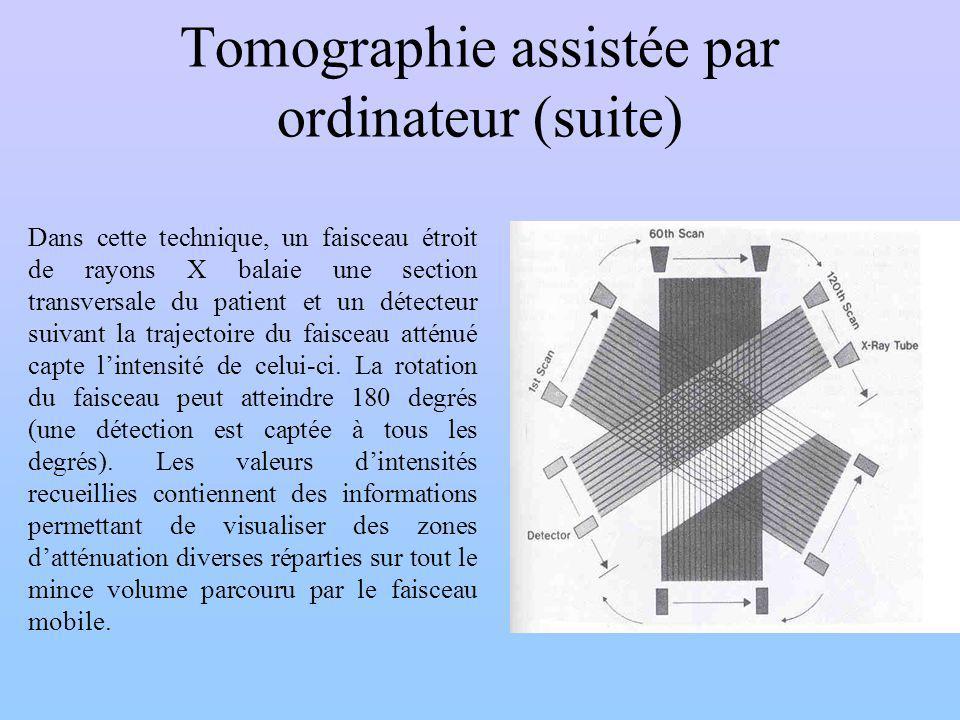Tomographie assistée par ordinateur (suite)