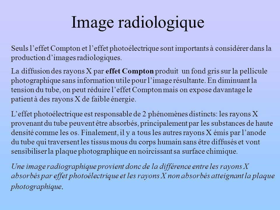 Image radiologique Seuls l'effet Compton et l'effet photoélectrique sont importants à considérer dans la production d'images radiologiques.