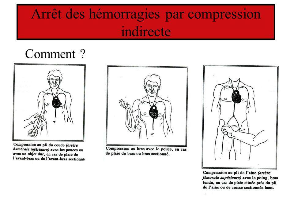 Arrêt des hémorragies par compression indirecte