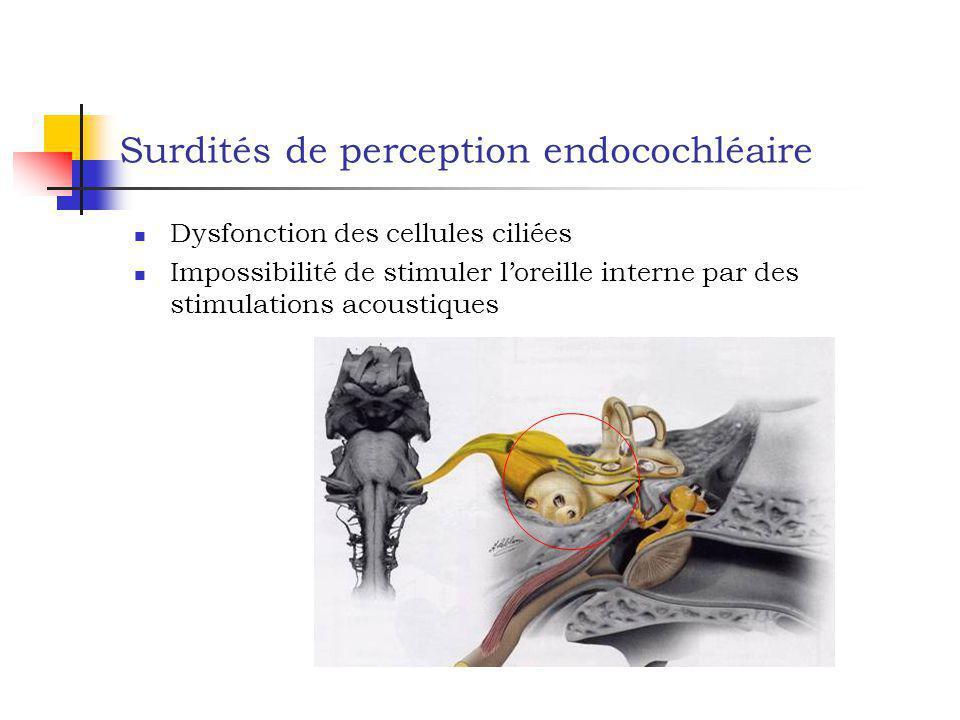 Surdités de perception endocochléaire