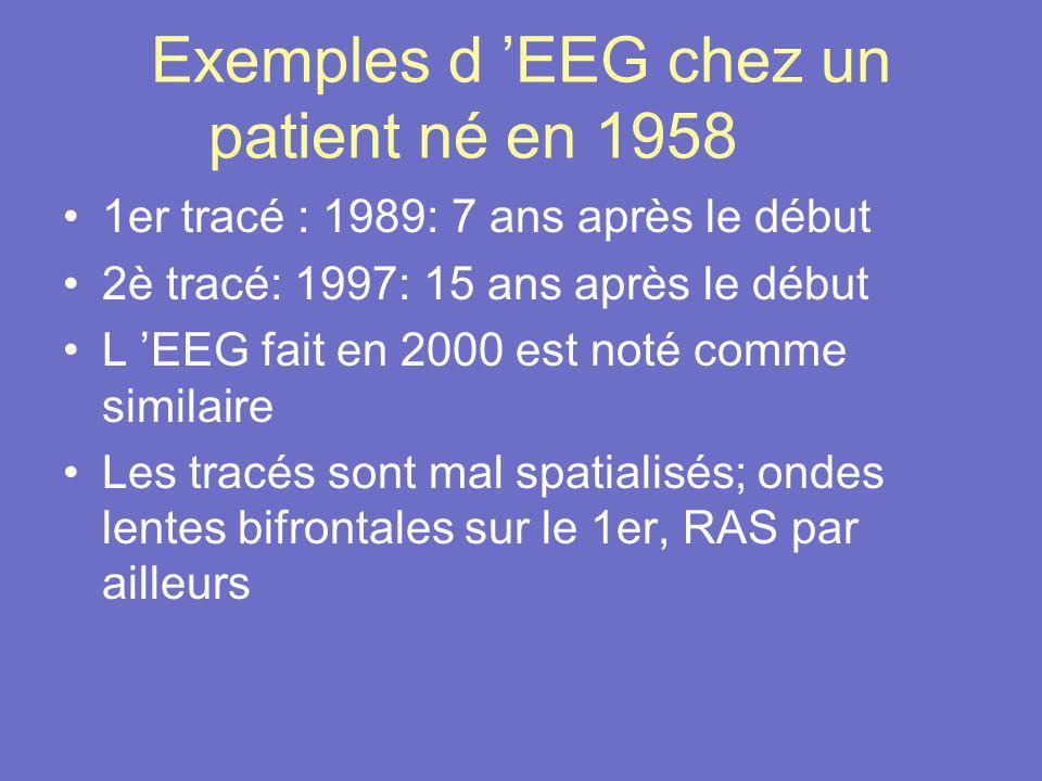 Exemples d 'EEG chez un patient né en 1958