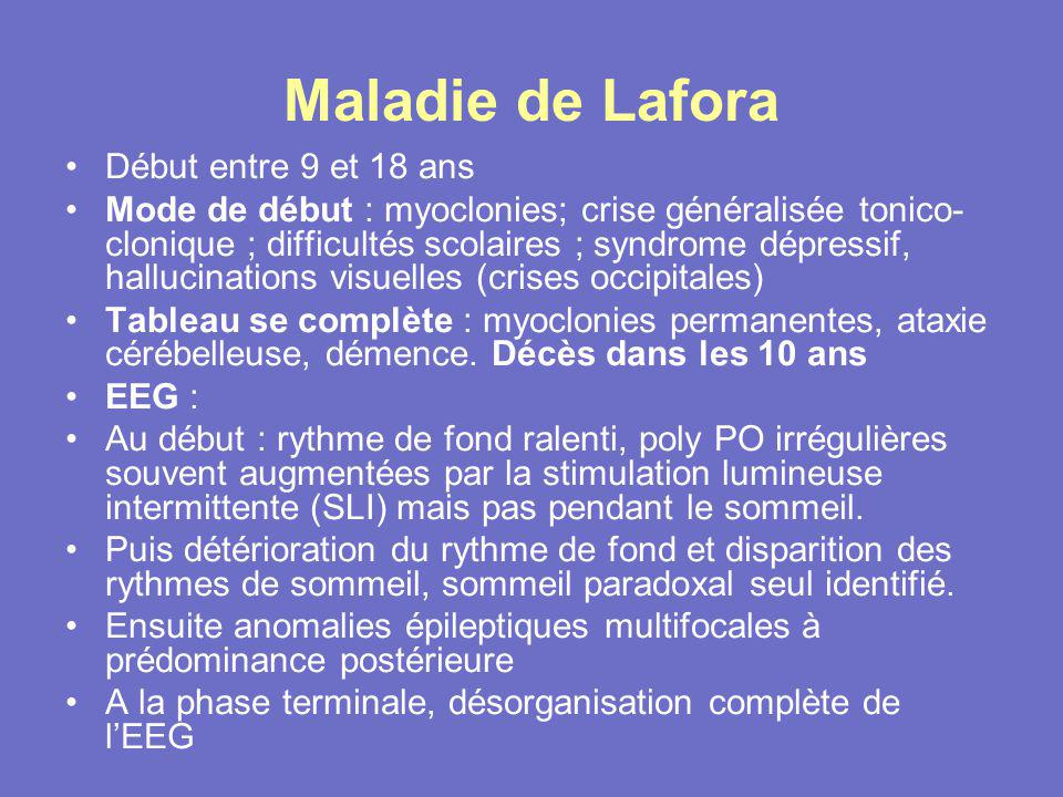 Maladie de Lafora Début entre 9 et 18 ans
