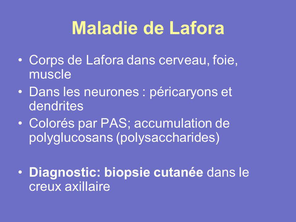 Maladie de Lafora Corps de Lafora dans cerveau, foie, muscle