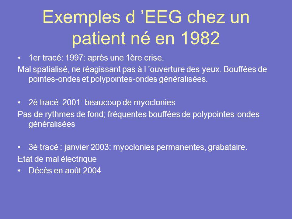 Exemples d 'EEG chez un patient né en 1982