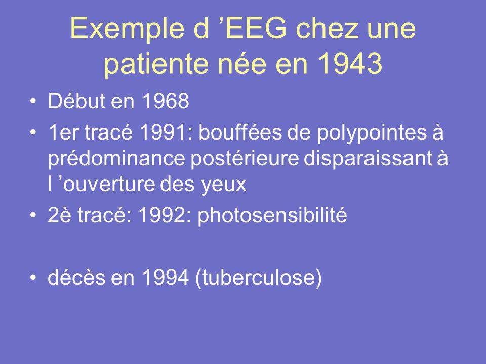 Exemple d 'EEG chez une patiente née en 1943