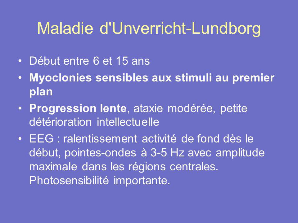 Maladie d Unverricht-Lundborg