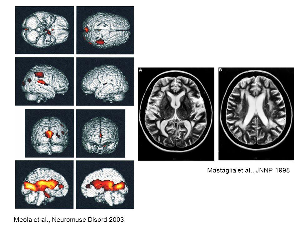 Meola et al., Neuromusc Disord 2003