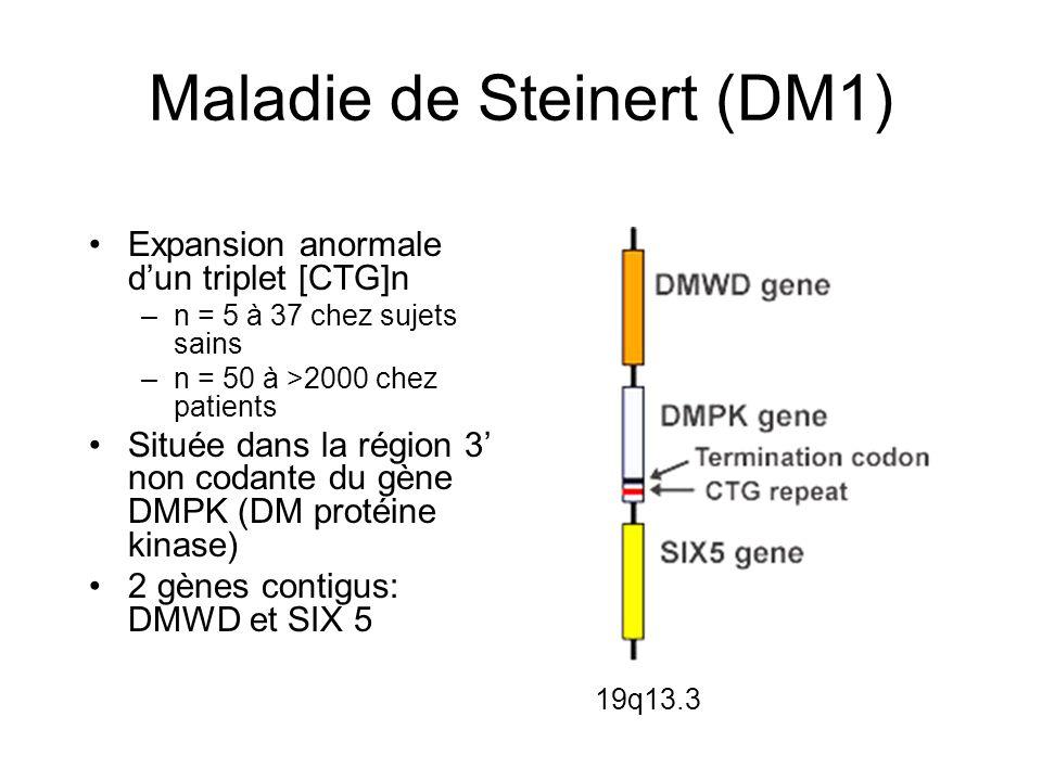 Maladie de Steinert (DM1)