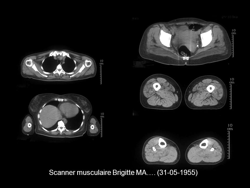 Scanner musculaire Brigitte MA…. (31-05-1955)