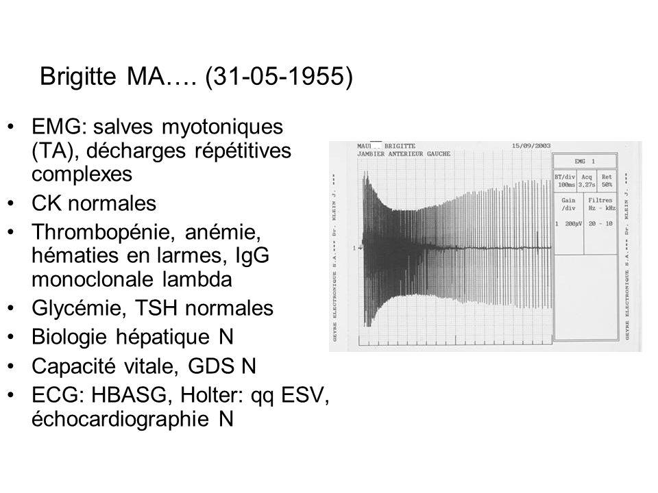 Brigitte MA…. (31-05-1955) EMG: salves myotoniques (TA), décharges répétitives complexes. CK normales.