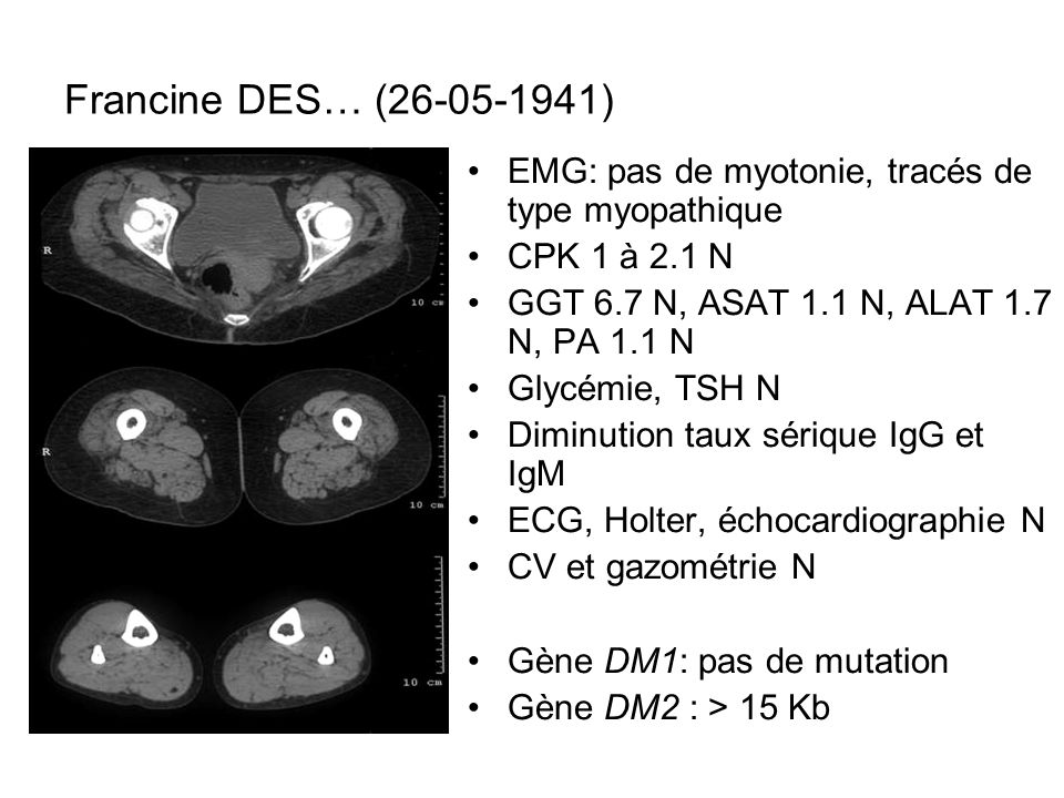 Francine DES… (26-05-1941) EMG: pas de myotonie, tracés de type myopathique. CPK 1 à 2.1 N. GGT 6.7 N, ASAT 1.1 N, ALAT 1.7 N, PA 1.1 N.