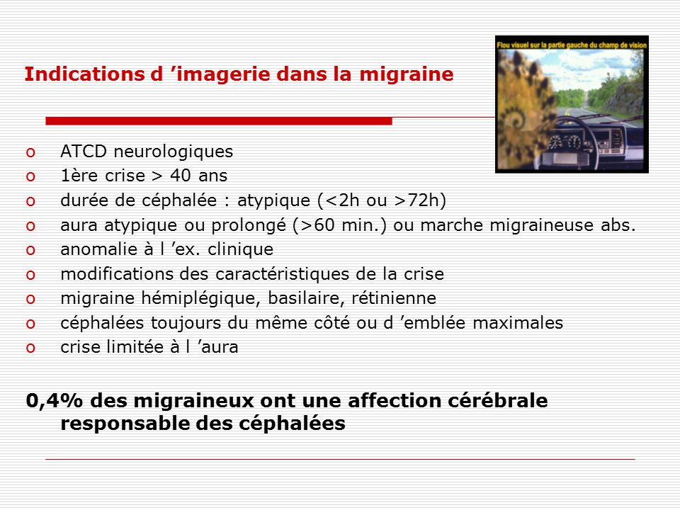 Indications d 'imagerie dans la migraine