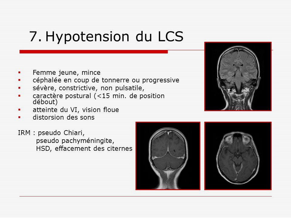 7. Hypotension du LCS Femme jeune, mince