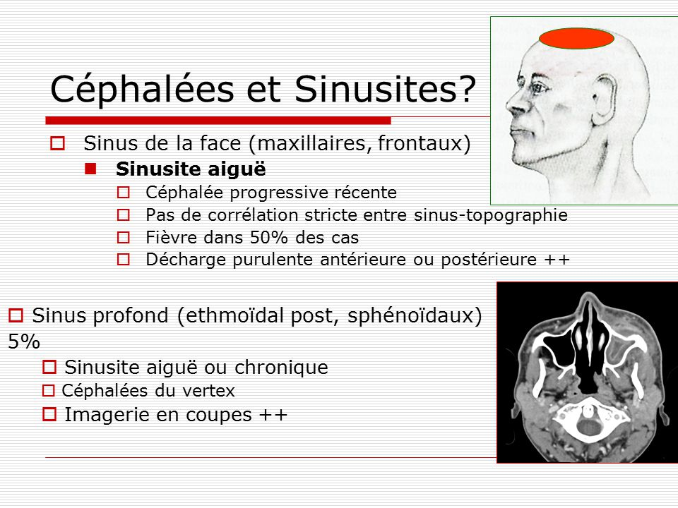 Céphalées et Sinusites