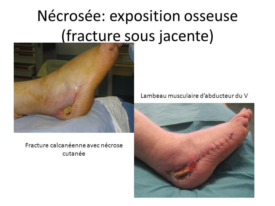 Nécrosée: exposition osseuse (fracture sous jacente)