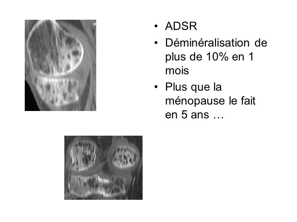 ADSR Déminéralisation de plus de 10% en 1 mois Plus que la ménopause le fait en 5 ans …