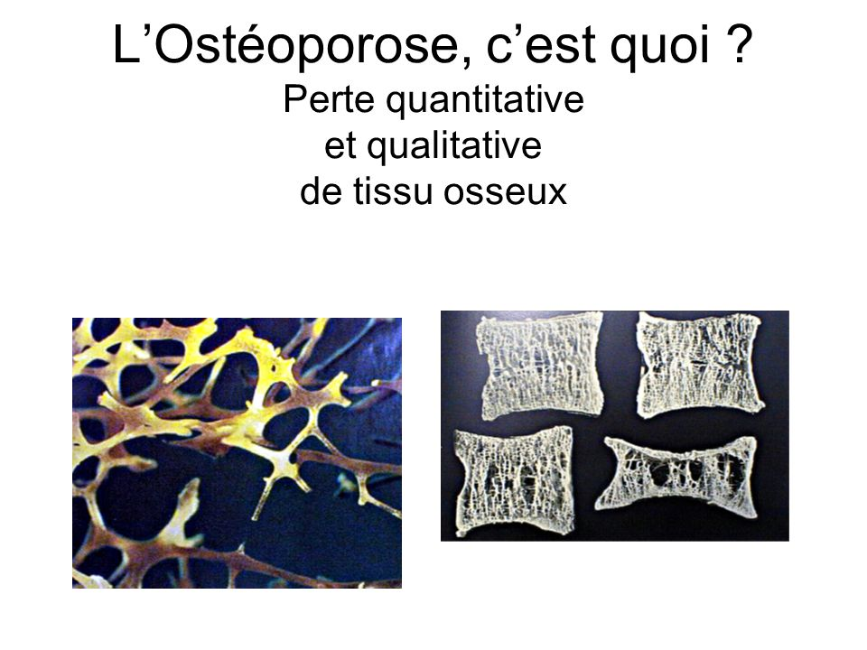 L'Ostéoporose, c'est quoi