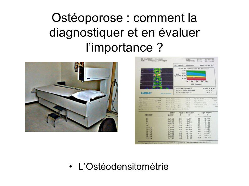 Ostéoporose : comment la diagnostiquer et en évaluer l'importance