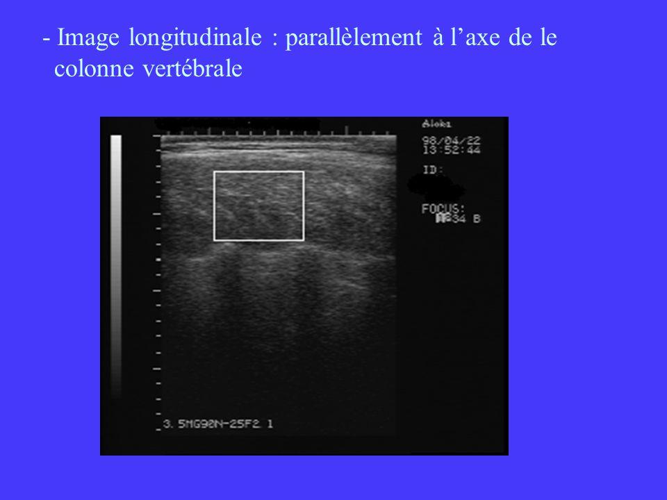 - Image longitudinale : parallèlement à l'axe de le colonne vertébrale