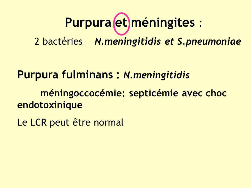 Purpura et méningites :