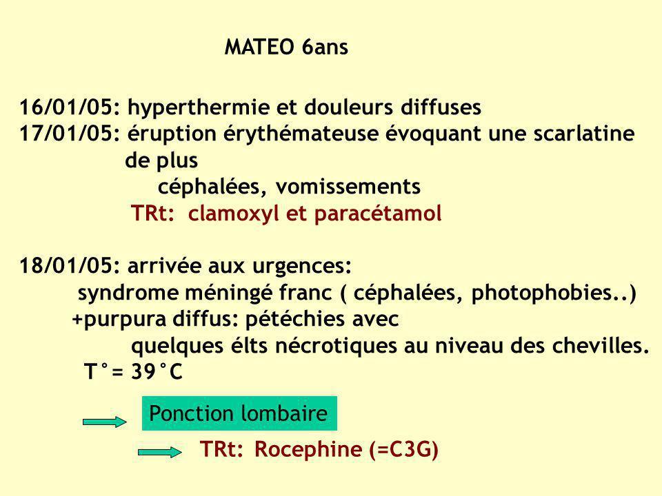 MATEO 6ans 16/01/05: hyperthermie et douleurs diffuses. 17/01/05: éruption érythémateuse évoquant une scarlatine.