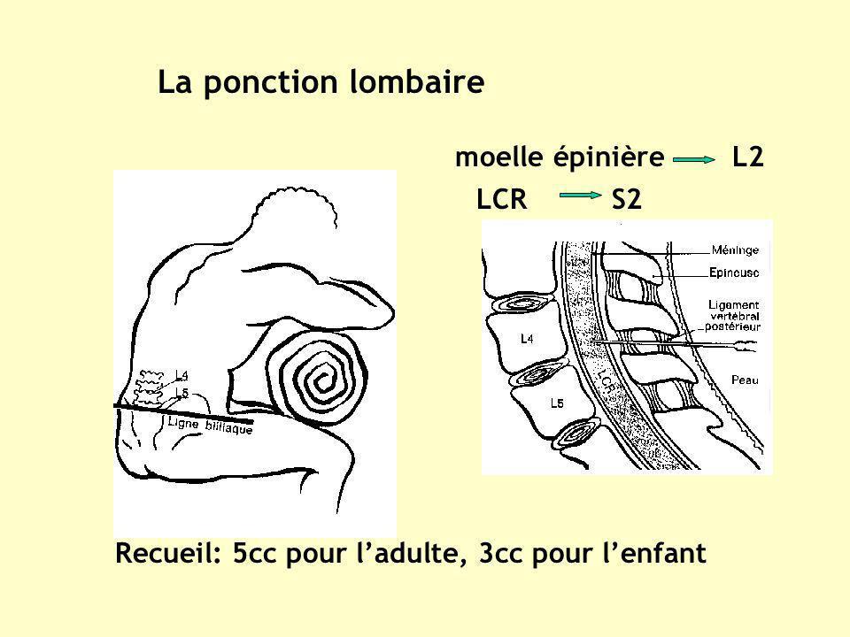 La ponction lombaire moelle épinière L2 LCR S2
