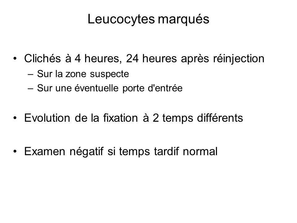Leucocytes marqués Clichés à 4 heures, 24 heures après réinjection