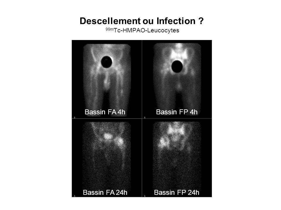 Descellement ou Infection 99mTc-HMPAO-Leucocytes