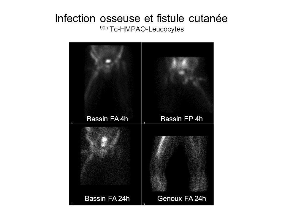 Infection osseuse et fistule cutanée 99mTc-HMPAO-Leucocytes