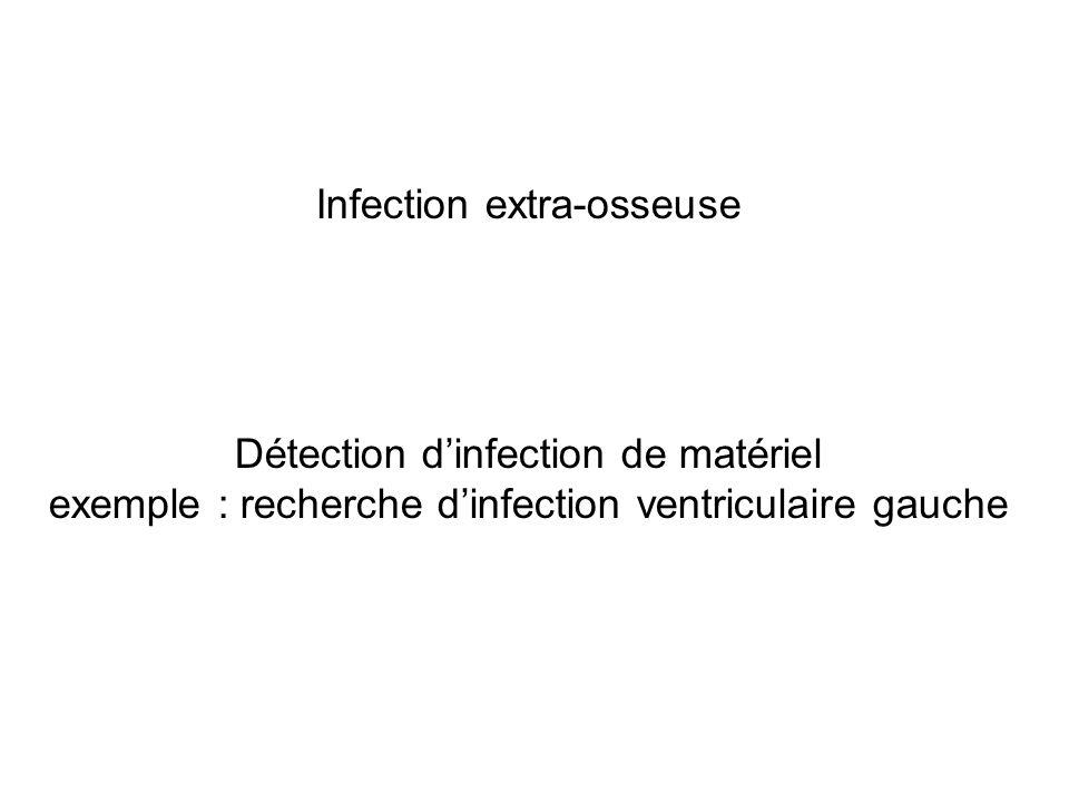 Infection extra-osseuse Détection d'infection de matériel exemple : recherche d'infection ventriculaire gauche