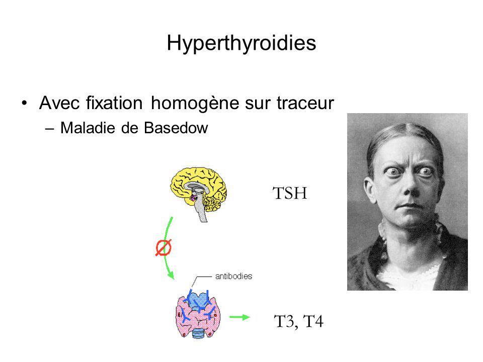 Hyperthyroidies Avec fixation homogène sur traceur TSH T3, T4