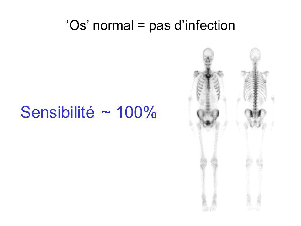 'Os' normal = pas d'infection