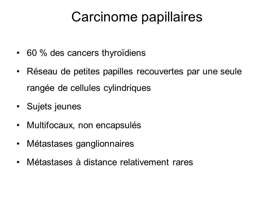 Carcinome papillaires