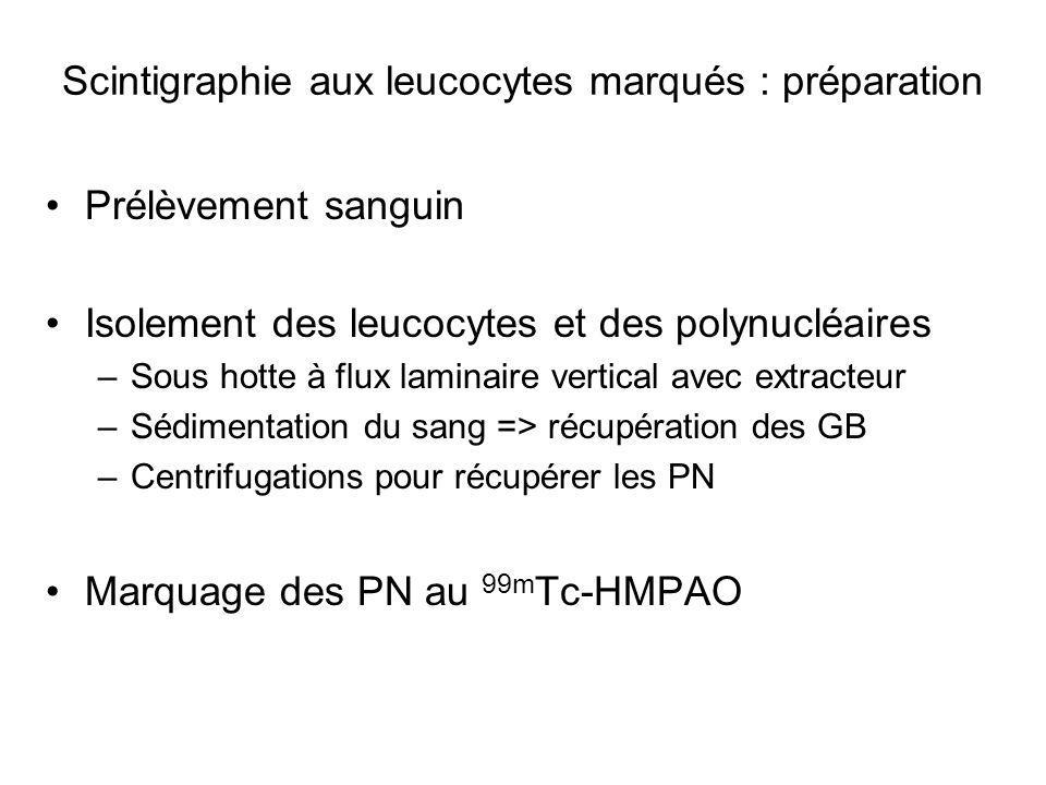 Scintigraphie aux leucocytes marqués : préparation