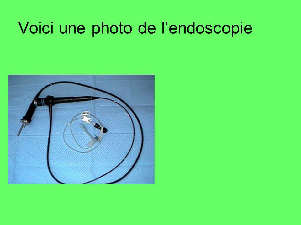 Voici une photo de l'endoscopie