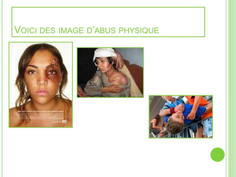 Voici des image d'abus physique