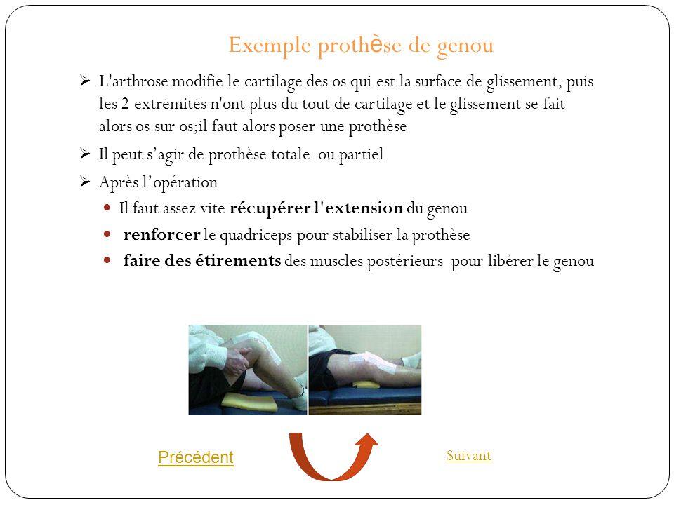 Exemple prothèse de genou
