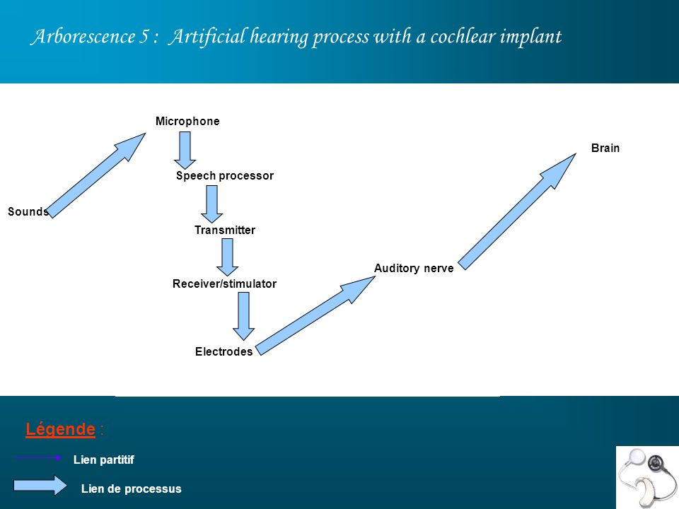 Arborescence 5 : Artificial hearing process with a cochlear implant
