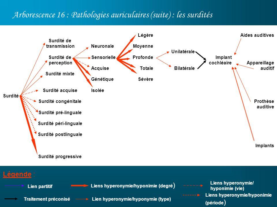 Surdité péri-linguale