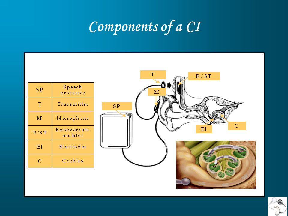 Components of a CI