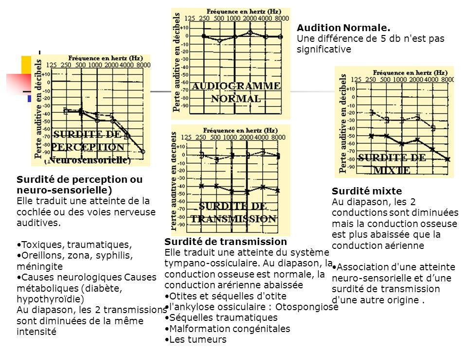 Audition Normale. Une différence de 5 db n est pas significative