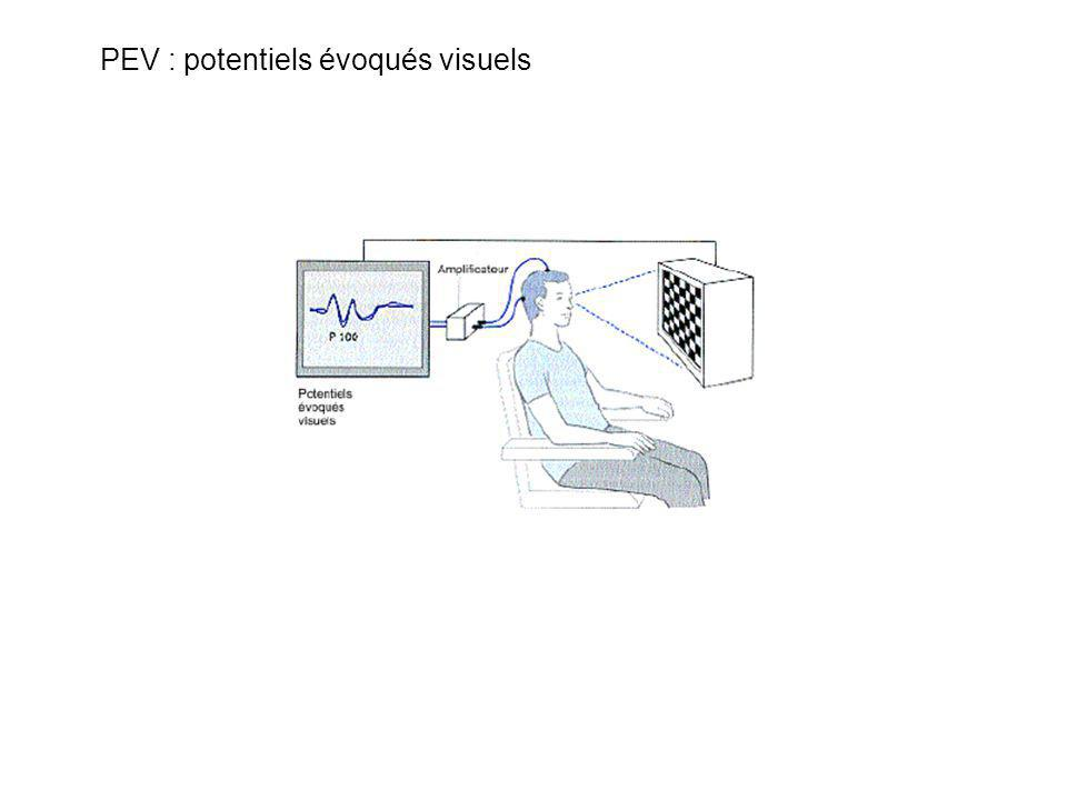 PEV : potentiels évoqués visuels