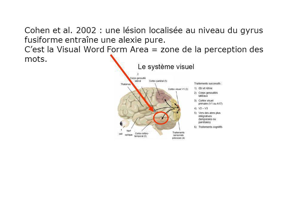 Cohen et al. 2002 : une lésion localisée au niveau du gyrus fusiforme entraîne une alexie pure.