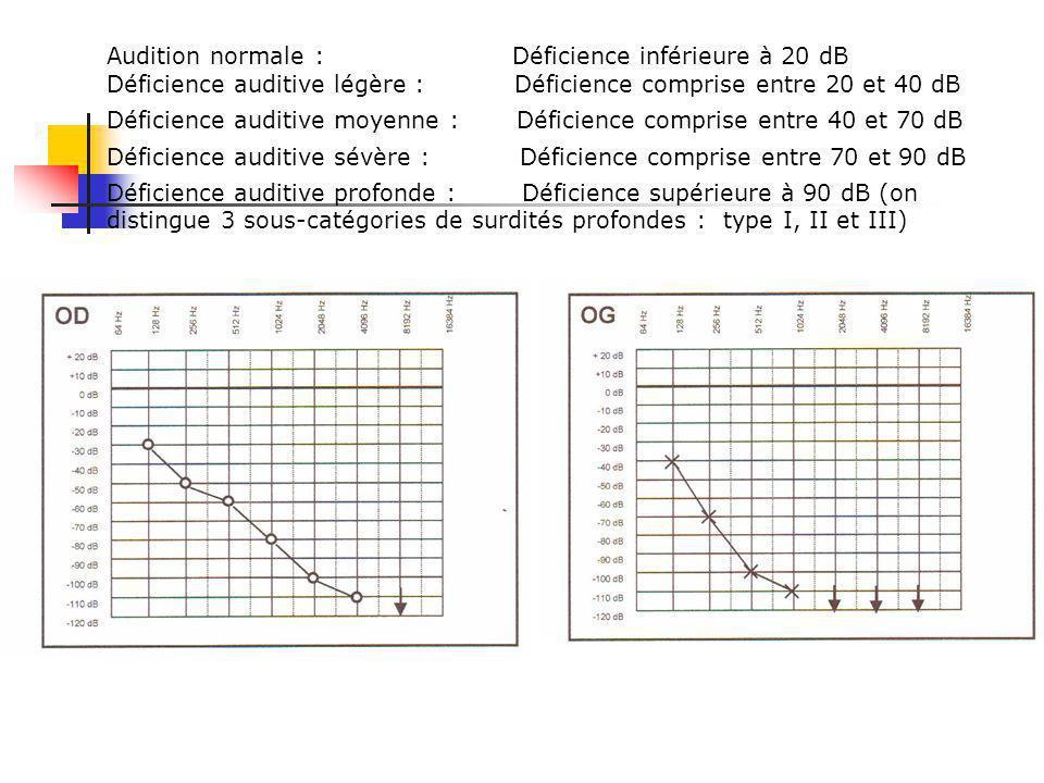 Audition normale : Déficience inférieure à 20 dB Déficience auditive légère : Déficience comprise entre 20 et 40 dB