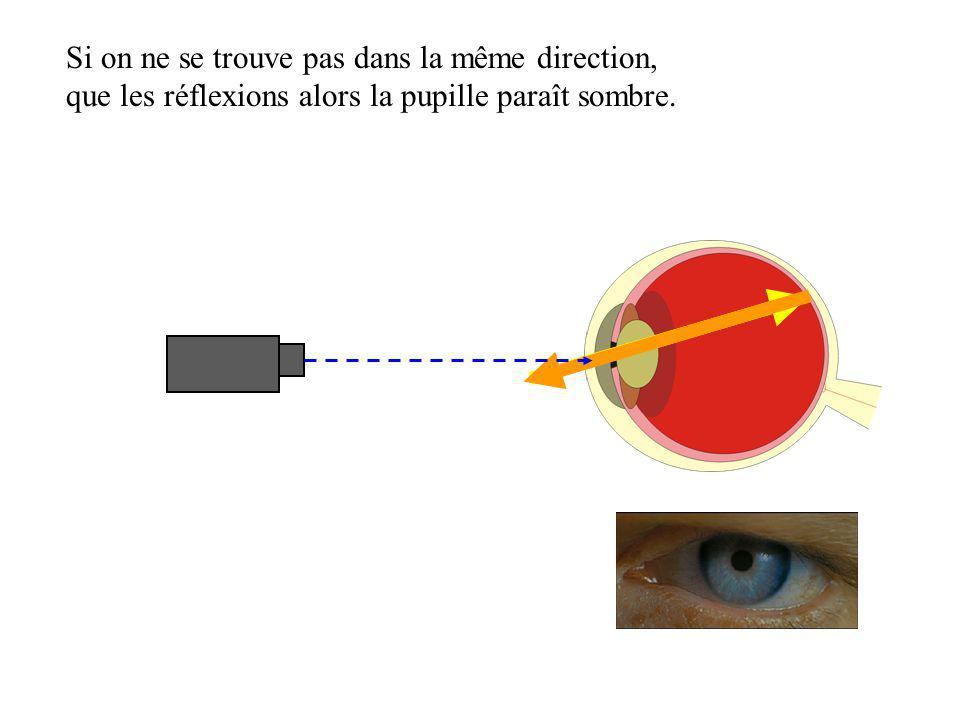 Si on ne se trouve pas dans la même direction, que les réflexions alors la pupille paraît sombre.