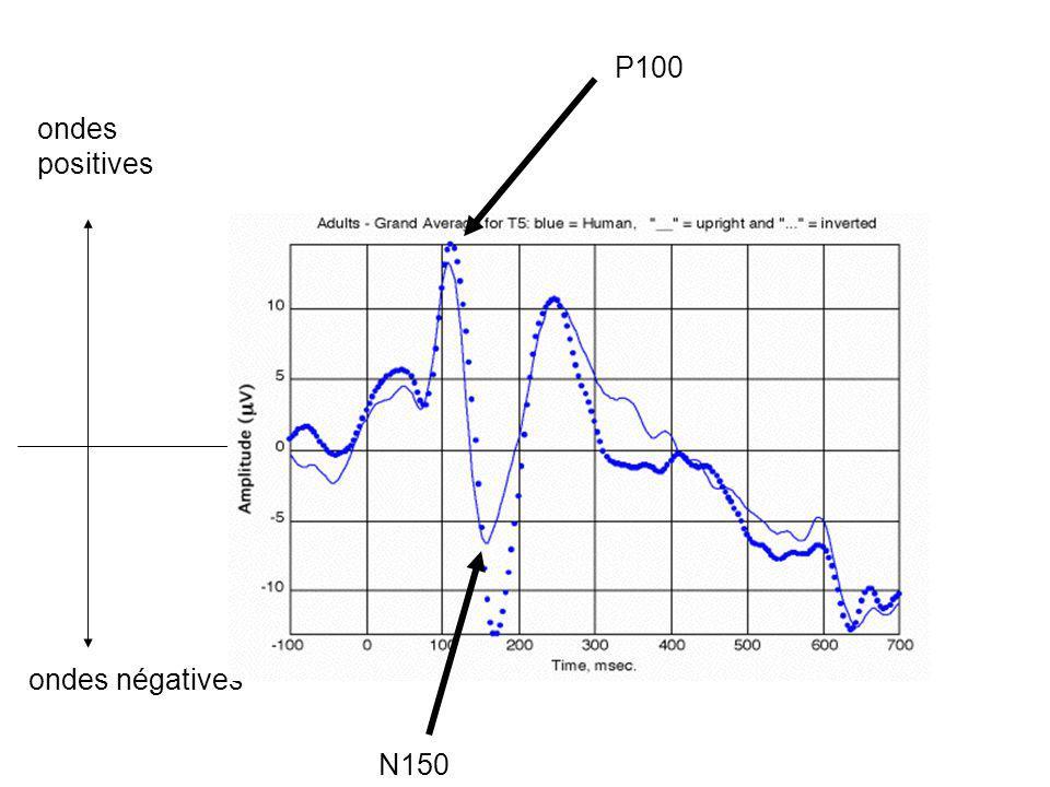 P100 ondes positives ondes négatives N150