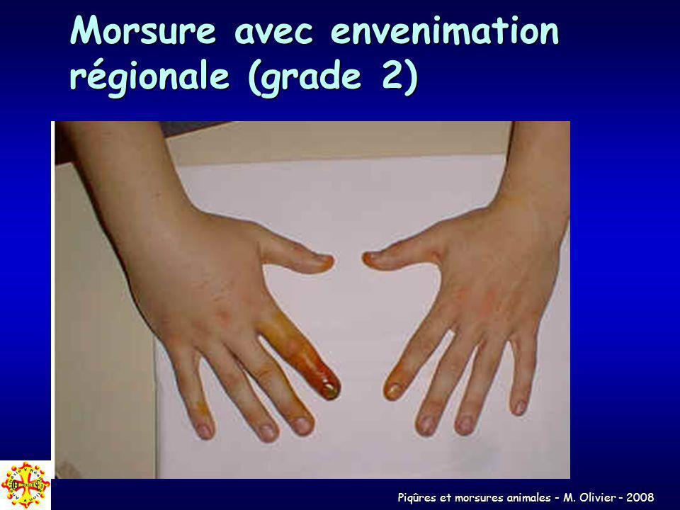 Morsure avec envenimation régionale (grade 2)